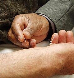 Imatge relacionada amb acupuntura