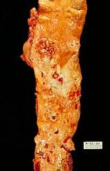 Imatge relacionada amb arteriosclerosi