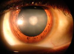 Imatge relacionada amb cataracta