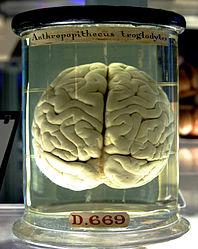 Imatge relacionada amb cervell