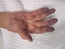 Imatge relacionada amb hipòxia