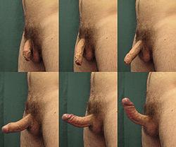 Imatge relacionada amb erecció