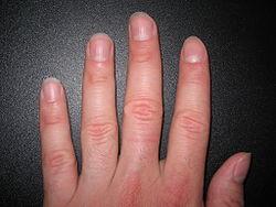 Imatge relacionada amb ungla