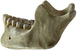 Imatge relacionada amb maxil·lar inferior