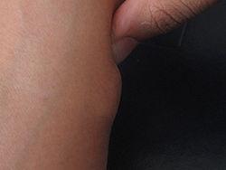 Imatge relacionada amb lipoma