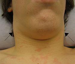Imatge relacionada amb limfadenopatia