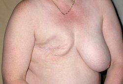 Imatge relacionada amb mastectomia