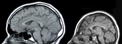 Imatge relacionada amb microcefàlia