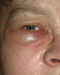 Imatge relacionada amb edema