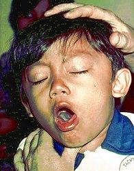 Imatge relacionada amb tos