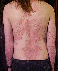 Imatge relacionada amb psoriasi