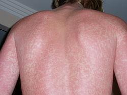Imatge relacionada amb dermatologia