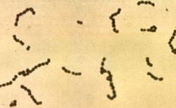 Imatge relacionada amb estreptococ