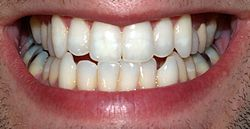 Imatge relacionada amb dent