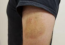 Imatge relacionada amb hematoma